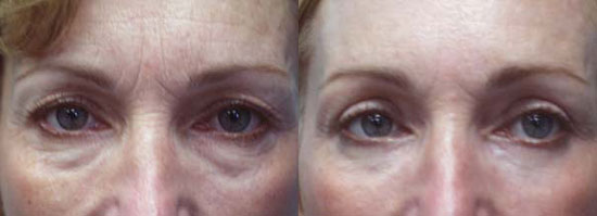blepharoplasty-before-after-photo2