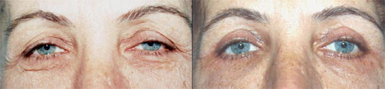 blepharoplasty-before-after-photo4
