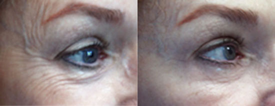 botox-cosmetic-before-after