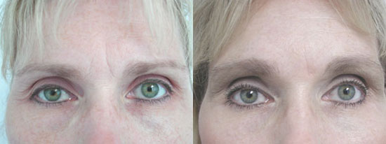 browlift-before-after-a