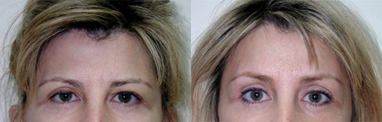 browlift-before-after-b