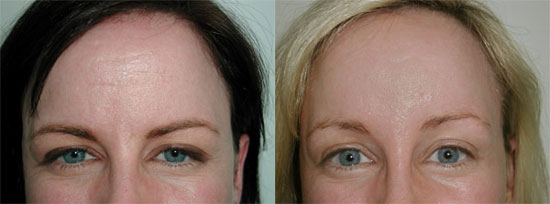 browlift-before-after-d