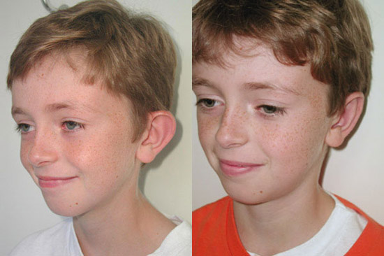 ear-surgery-before-after-2