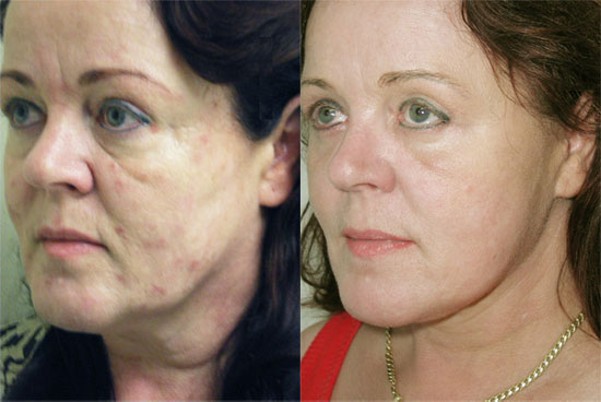 facelift-before-after-2