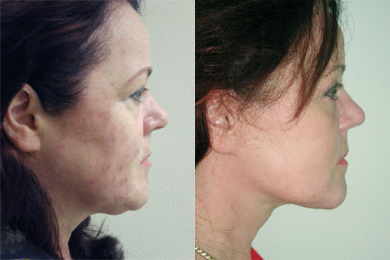 facelift-before-after-3