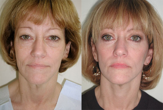 facelift-before-after-4