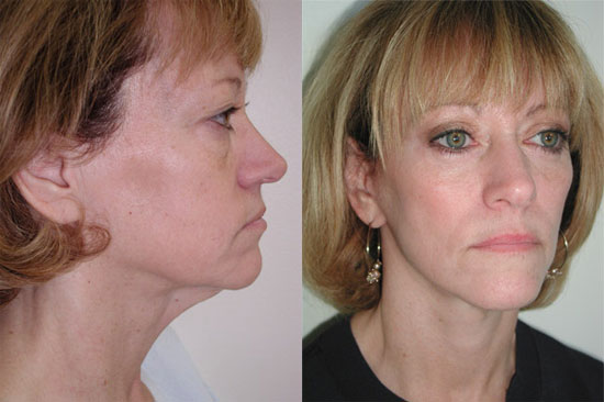 facelift-before-after-5