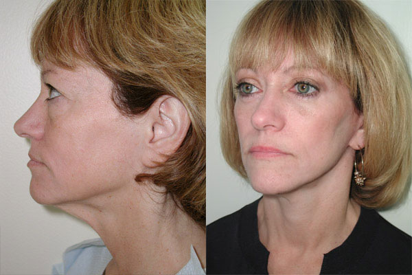 facelift-before-after-6