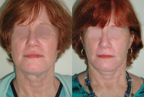 facelift-before-after-photos-1
