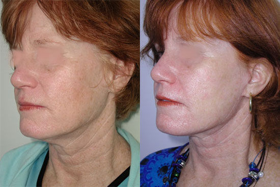 facelift-before-after-photos-2