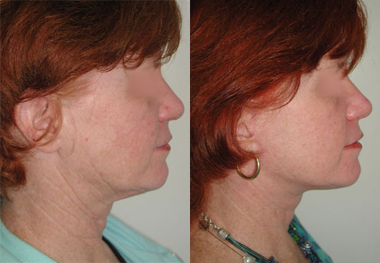 facelift-before-after-photos-3