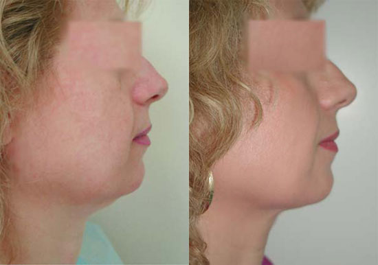 facelift-before-after-photos-5