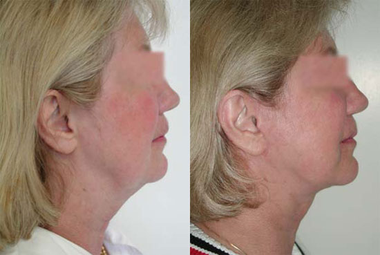 facelift-before-after-photos-7