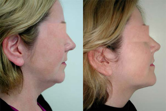 facelift-before-after-photos-9