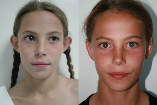 otoplasty-before-after-front