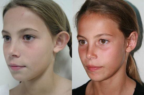 otoplasty-before-after-profile