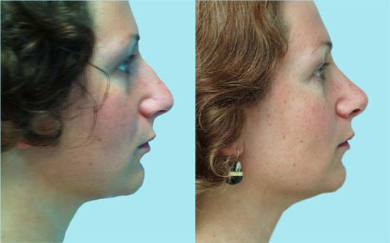rhinoplasty-before-after-c