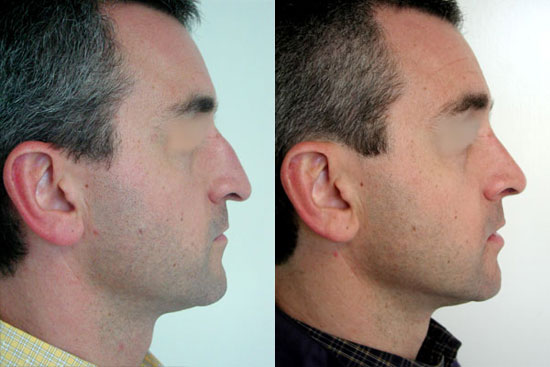 rhinoplasty--before-after-photos-4