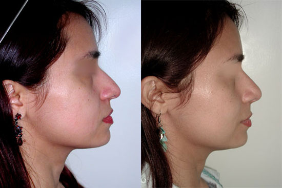 rhinoplasty--before-after-photos-5