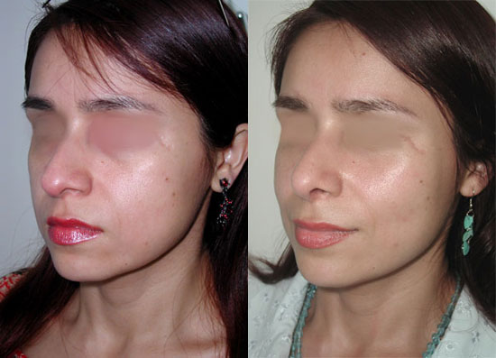 rhinoplasty--before-after-photos-6