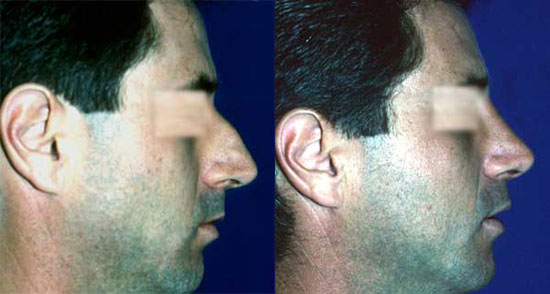 rhinoplasty--before-after-photos-8