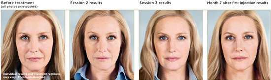 sculptra-before-after-photos-1