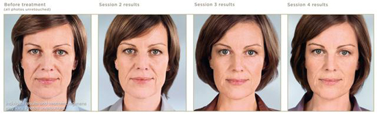 sculptra-before-after-photos-3