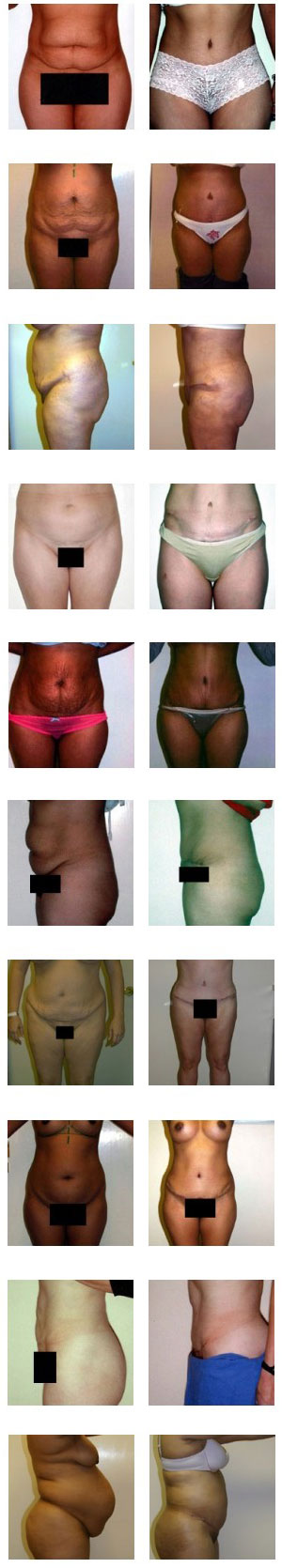 abdominoplasty-before-after