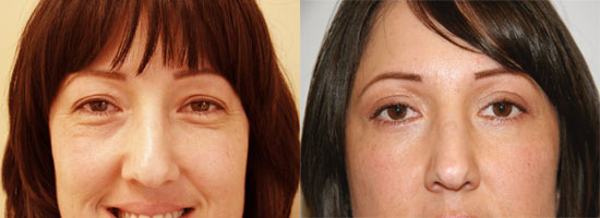 blepharoplasty-before-after-photo1
