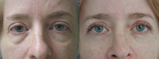 blepharoplasty-before-after-photo3