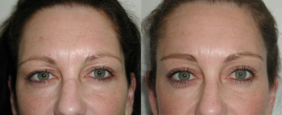 browlift-before-after-c