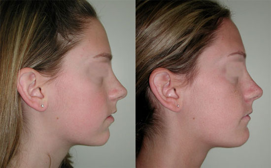 chin-surgery-before-after-1