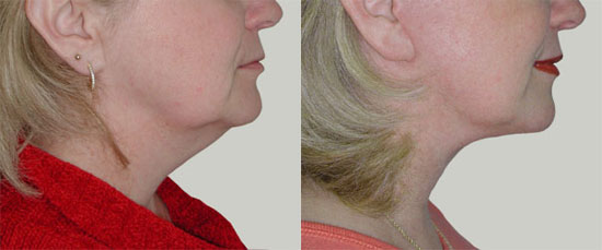 facelift-before-after-photos-4