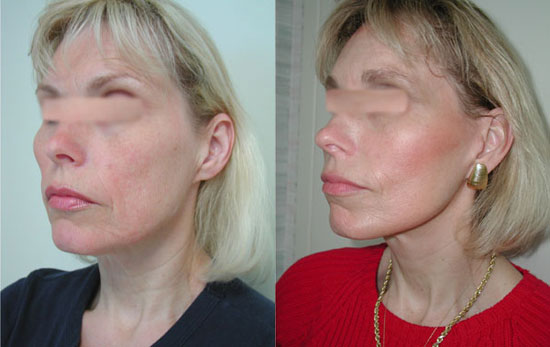 facelift-before-after-photos-6