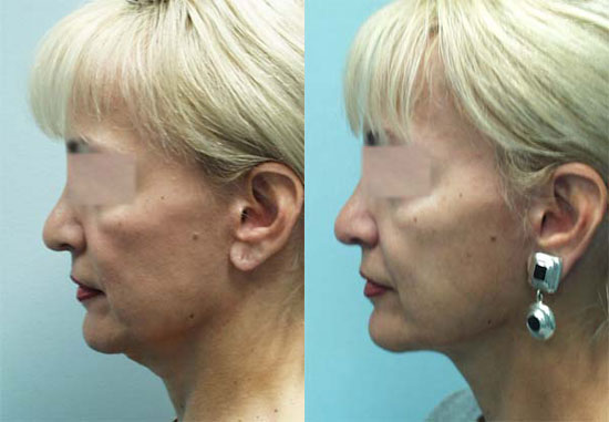 facelift-before-after-photos-8