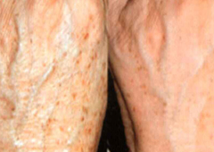 mixto-laser-before-after-photo-hands
