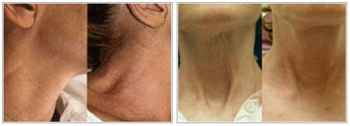 mixto-laser-before-after-photo-neck
