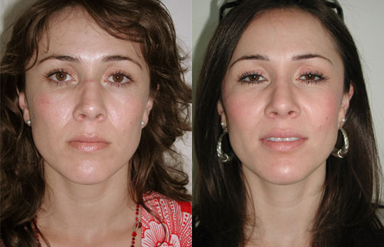 rhinoplasty-before-after-a