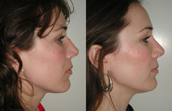rhinoplasty-before-after-b