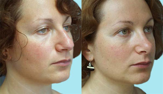 rhinoplasty-before-after-d