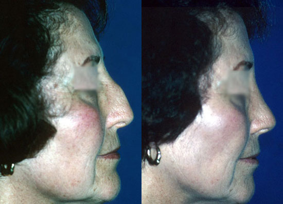 rhinoplasty--before-after-photos-1