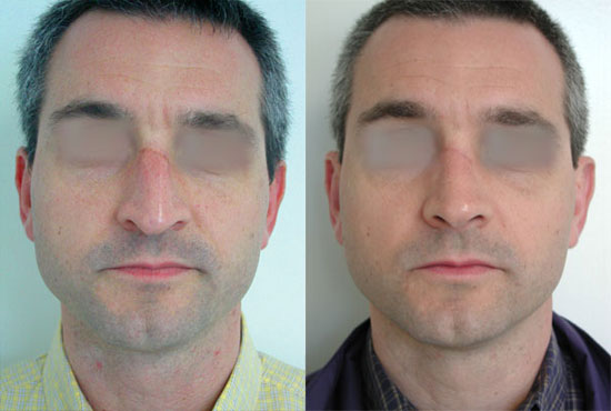 rhinoplasty--before-after-photos-2
