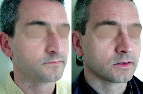 rhinoplasty--before-after-photos-3