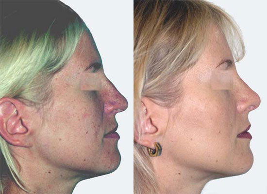 rhinoplasty--before-after-photos-7