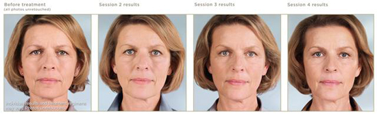 sculptra-before-after-photos-2