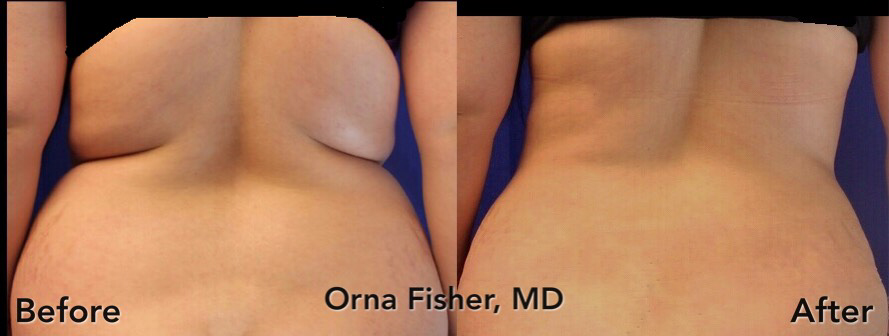 dr-fisher-lipo-waist