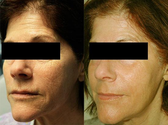 MiXto Laser | Premier Plastic Surgery